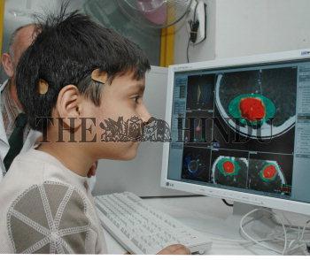 Image Id : 4332807 <span>Date : 2005-02-12 <span>Category : Health</span>