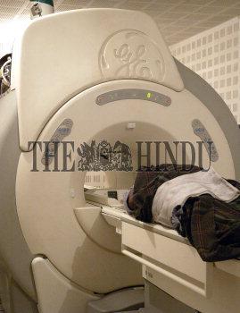 Image Id : 4604183 <span>Date : 2005-03-29 <span>Category : Health</span>