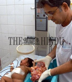 Image Id : 5576479 <span>Date : 2005-09-06 <span>Category : Health</span>