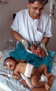 Image Id : 5576483 <span>Date : 2005-09-06 <span>Category : Health</span>