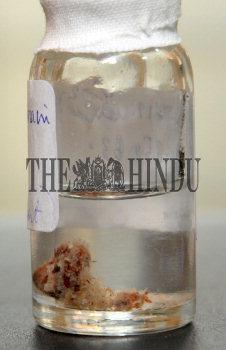 Image Id : 121466472 <span>Date : 2011-02-18 <span>Category : Health</span>